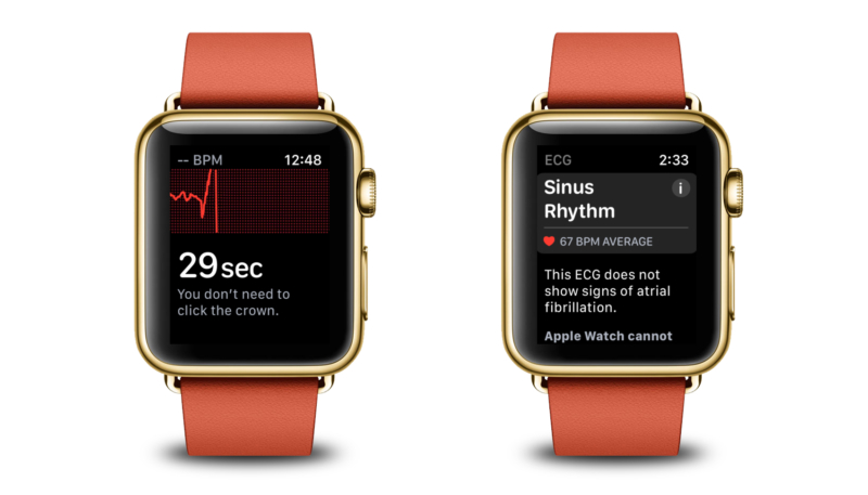 Apple Releases watchOS 5.2.1 to Public – Enables ECG Functionality for Additional European Countries